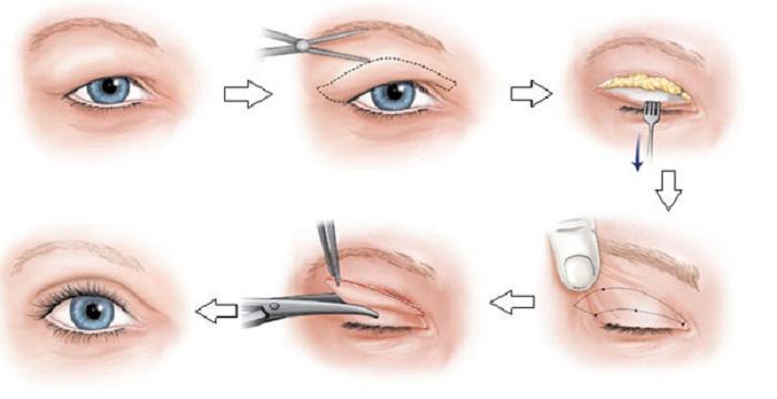 Đọc ngay bài viết này nếu bạn còn băn khoăn về việc cắt mí mắt có ảnh hưởng gì không