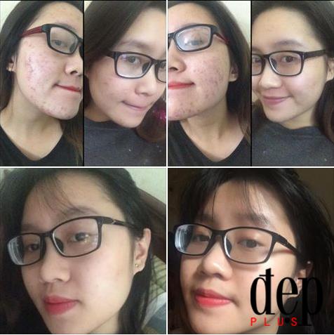 Quy trình skincare tìm lại làn da mịn màng của cô nàng từng bị mụn thâm khắp mặt