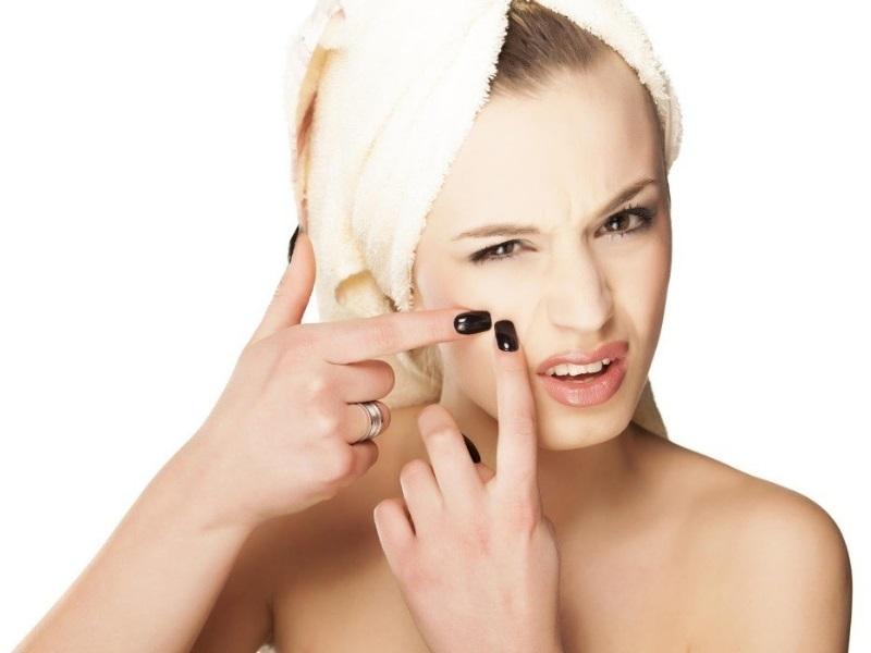 Nặn mụn: Thói quen ai cũng mắc phải khiến da mặt ngày càng sần sùi