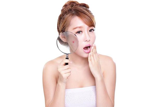 Những lý do khiến da bạn bị thâm sau mụn