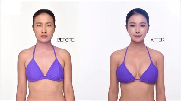 5 cô gái thành hot girl sau khi phẫu thuật thẩm mỹ