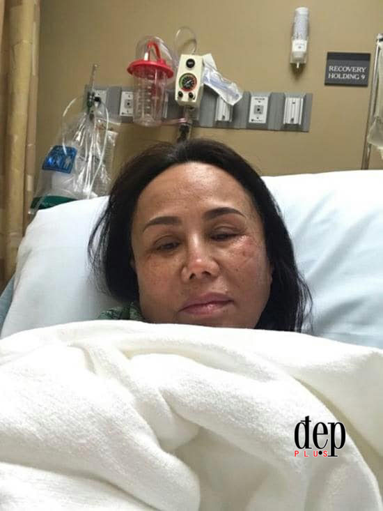 Sốc với hình ảnh Danh ca Thanh Tuyền tiều tụy trên giường bệnh sau tai nạn nghiêm trọng tại Mỹ