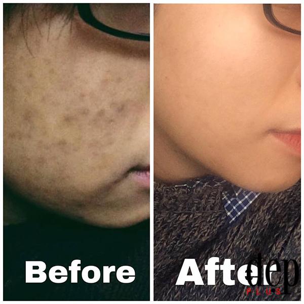 Bạn có thể làm sạch da đến mức nào?